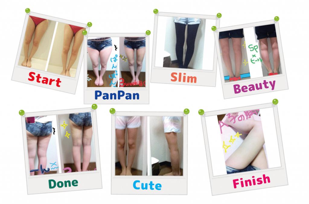 脂肪吸引 症例